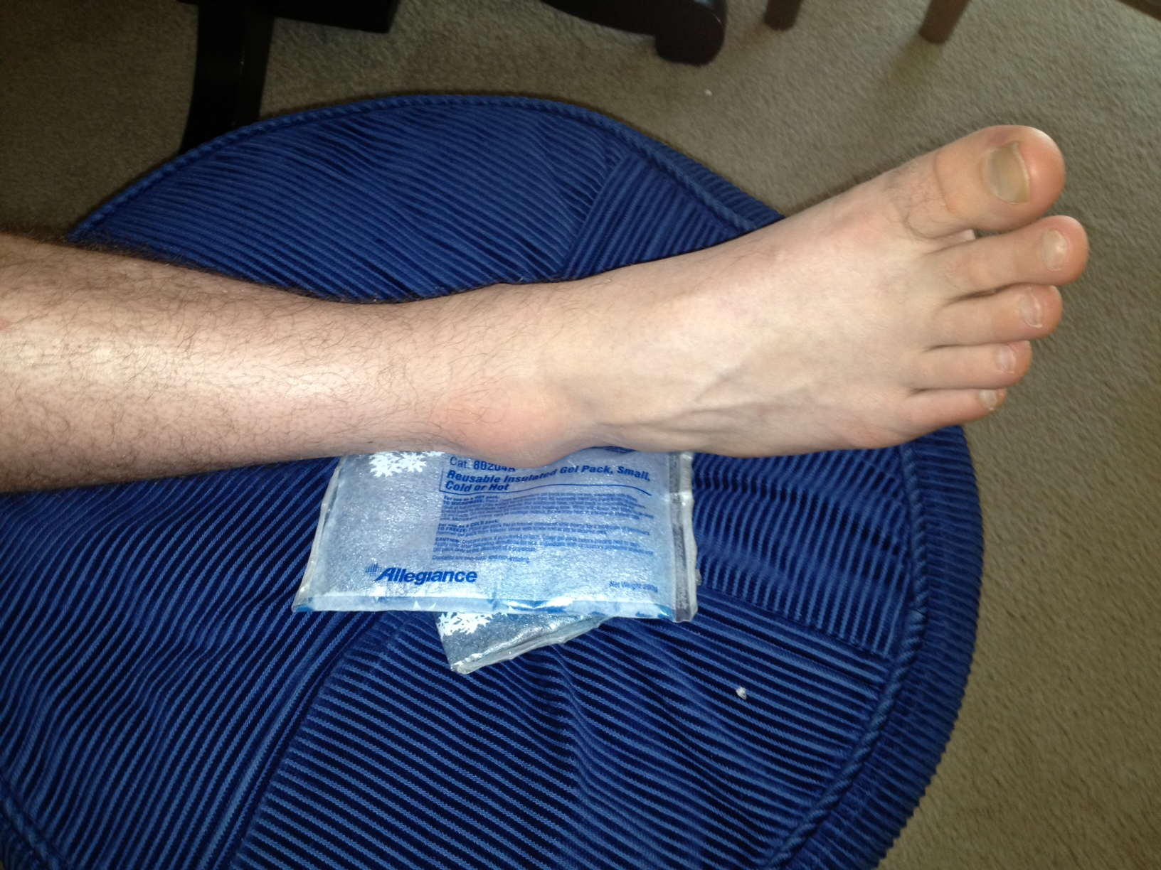 James' ankle
