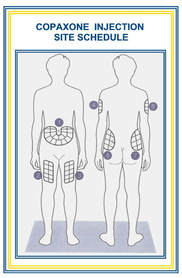 injection-site-body-illus1